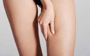 Anti-cellulite mesotherapy